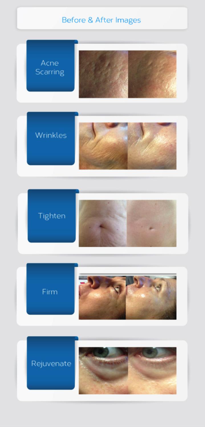 Bellevue Rejuvapen Micro Needling Procedures | Skin Tightening and